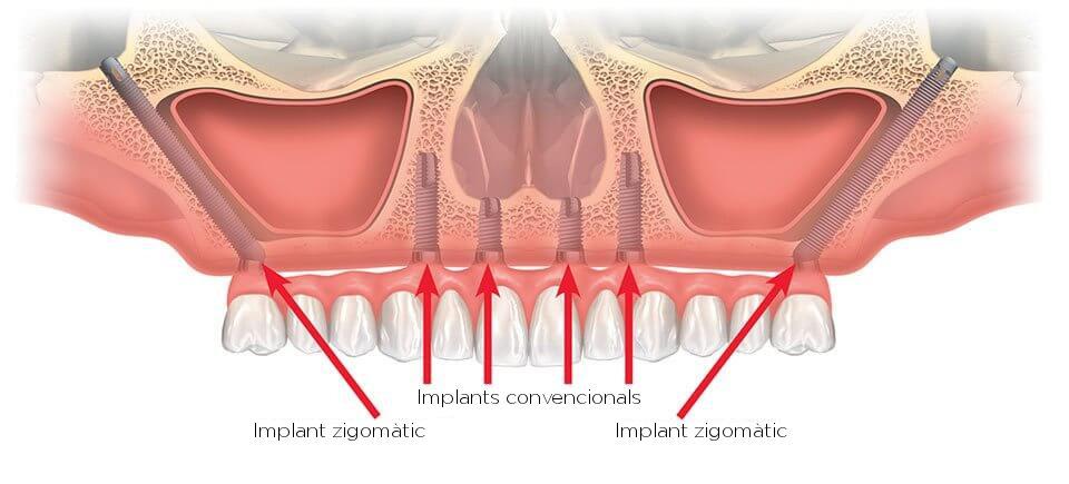 Implants zigomàtics Girona