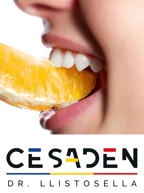 cómo afecta la alimentación a tus dientes