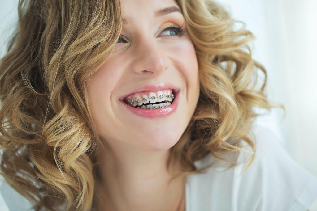 ortodoncia después de los 30
